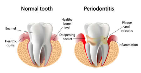 vector image tooth caries disease. Surface caries.Deep caries  Pulpitis Periodontitis. 스톡 콘텐츠