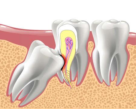 realistische 3D-Zähne und Weisheitszahnprobleme, orale Anatomie