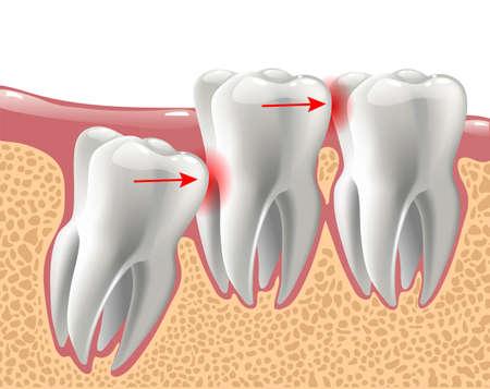dientes 3D realistas y problemas de muelas del juicio, anatomía oral