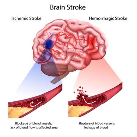 Schlaganfall-Typen Poster, Banner. Medizinische Vektorillustration. weißer Hintergrund, Anatomiebild des beschädigten menschlichen Gehirns, blockierte und gerissene Blutgefäße. Strich, realistisches 3D-Bild