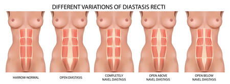 diastatic straight abdominal cavity before after pregnancy, vector anatomy, types and types of dissection, human anatomy, vector illustration