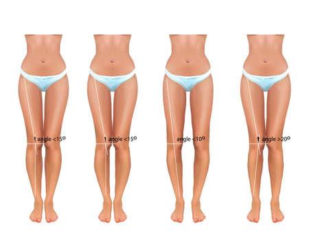 vector illustration of orthopedics. valgus and varus curvature of the feet, anatomy and medicine