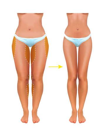 Surgical lines on beautiful womans body. vector Ilustração