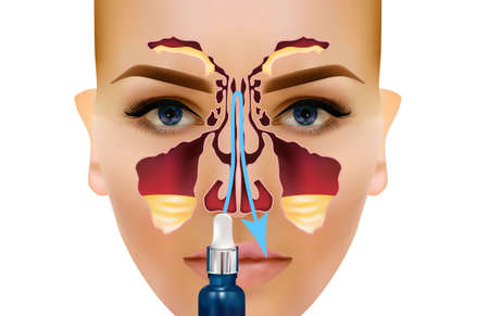Sinusitis. Healthy and inflammatory sinus. breath sounds. Arrow the ducts of the nose to drain the pus Spitz Illustration