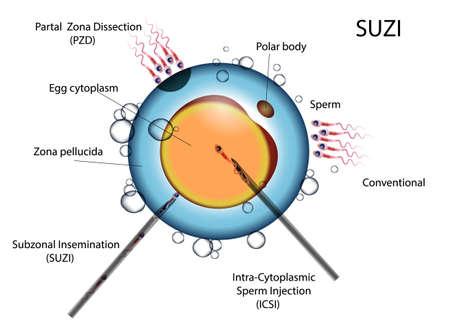 types of artificial fertilization of the egg by sperm ECO und ICSI SUZI Illustration