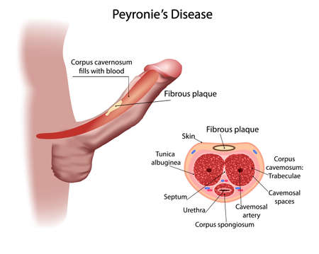 Peyronies disease, with formation of a fibrous plaque and penis deviation Illustration