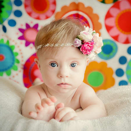 downs syndrome: cheerful little baby girl with Downs Syndrome