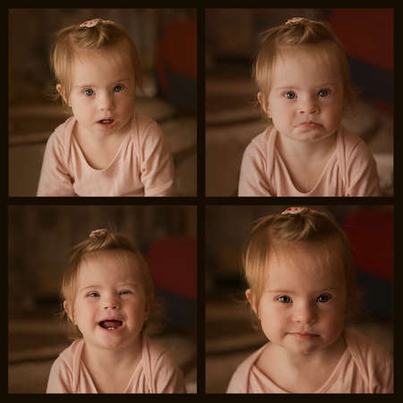 Emotions of a little girl with Down syndrome