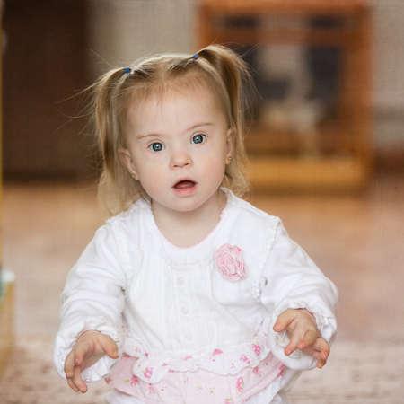 Sorprendido niña con síndrome de Down
