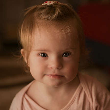 Emociones de una niña con síndrome de Down Foto de archivo - 30865883