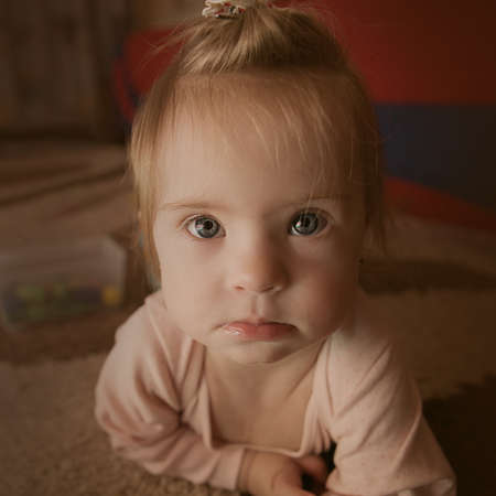 Emociones de una niña con síndrome de Down Foto de archivo - 30865886