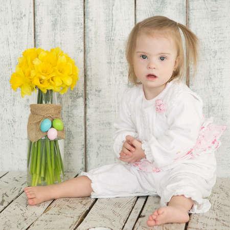 Retrato de una niña con síndrome de Down Foto de archivo - 36621148