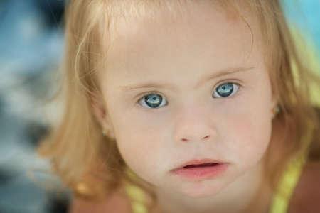 Niña alegre con síndrome de Down Foto de archivo - 36621927