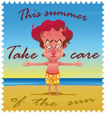 sunburn: Man on the beach with sunburn