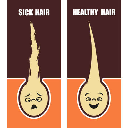 Medical Educational poster, sick and healthy hair. Vector illustration.