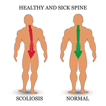 Healthy and diseased spine illustration