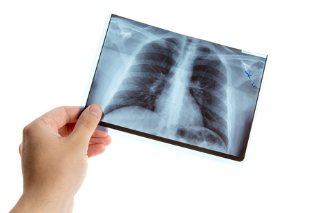 respiratory system: Male hand holding lung radiography, isolated on white background