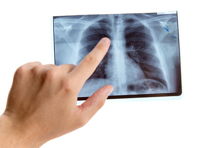 Male hand pointing on lung radiography, isolated on white background  photo