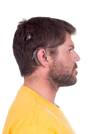 hearing aid:  young man with cochlear implant facing side ways