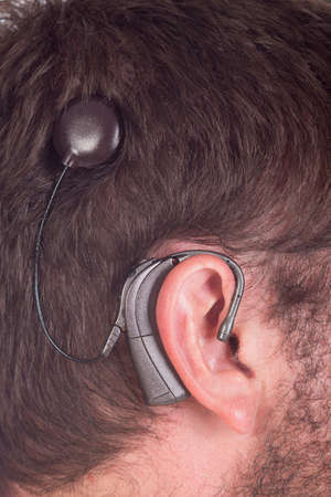 cochlear:  young man with cochlear implant facing side ways