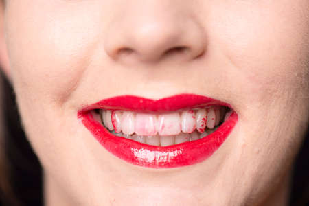 Close up of a caucasian face and mouth with red lips and lipstick on her white teeth Stock Photo