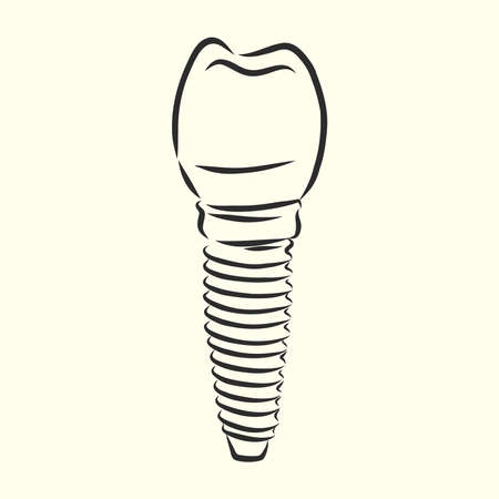 Vector illustration. sketches, dental implants. dental implant vector sketch