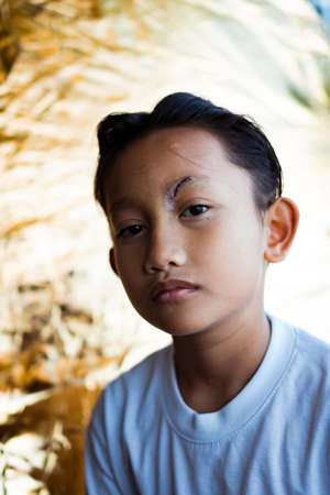 Healed minor cut wound after the surgical glue stiches.  Scar at left eyebrow of Southeast Asian, Malaysian little boy with double eyelid. Health concept.