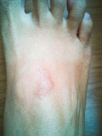 Hautausschlag durch Meereskorallenvergiftung, das heißt im Heilungsprozess nach dem Auftragen des Salzes auf die Haut.