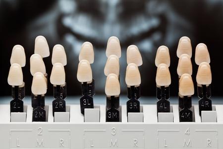 Dental teeth shades.