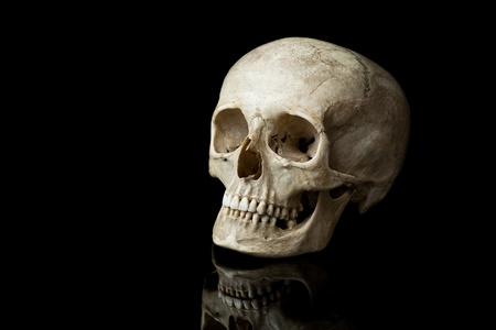 Human skull.
