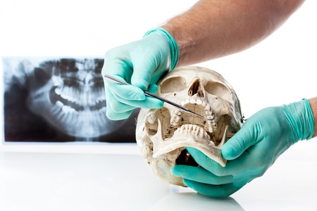 Dentista mostrando carie in un teschio umano Archivio Fotografico