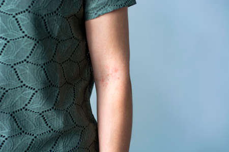 Itchy red bumps on crook or female arm / elbow. Irritated skin rash. Concept of skincare, eczema, allergy rash and other skin disease Stok Fotoğraf