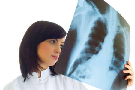 Female doctor looking at x-ray image on white photo