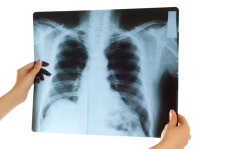 Doctor looking at x-ray image on white Stock Photo - 3651521