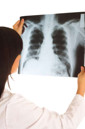 Female doctor looking at x-ray image on white Stock Photo - 3997848