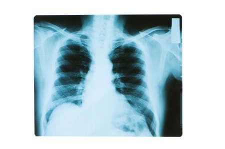 adult bones: X-ray image of chest bones of adult
