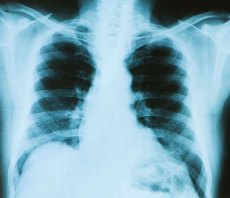 radiological: X-ray image of chest bones of adult
