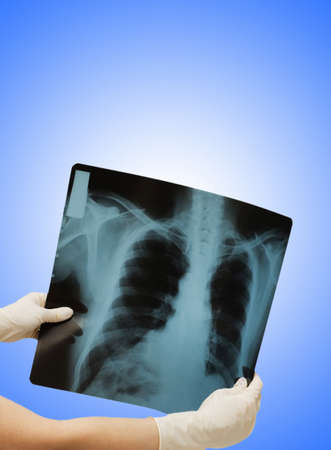 Two hands holding x-ray image of human body Stock Photo - 12228729