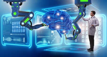 ロボット アームを用いた脳手術