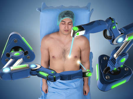 Chirurgie durch Roboterarm durchgeführt Standard-Bild - 78739715
