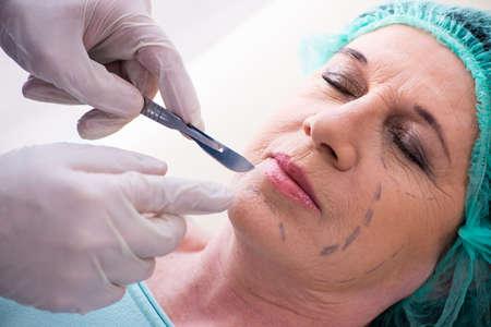 Alte Frau besucht männlichen Arzt für plastische Chirurgie