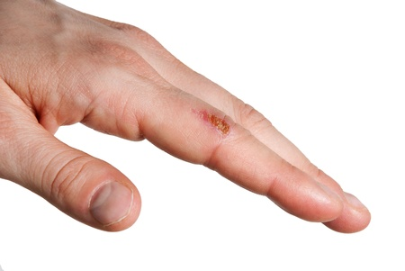 pangs: una piccola ferita su un dito, isolato