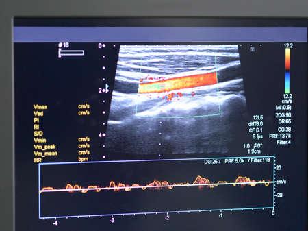 Echografie van de bloedvaten op het scherm