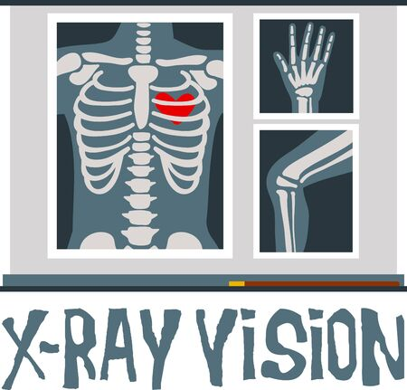 Xray helps us know our internal health status