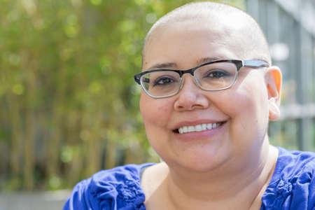rak: Hiszpanie kobieta z rakiem piersi uczy się radzić sobie z wypadaniem włosów Zdjęcie Seryjne