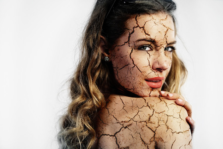 Cracked skin. Cosmetic treatment concept