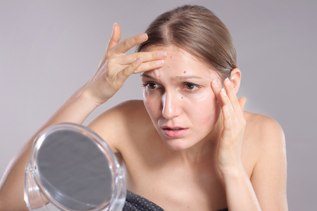 zit: Young woman squeeze her acne in front of the mirror. Woman skin care concept
