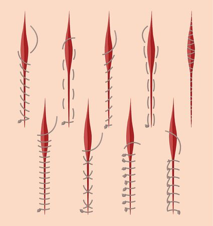 Series Of Different Medical Stitches Isolated On Pink Background