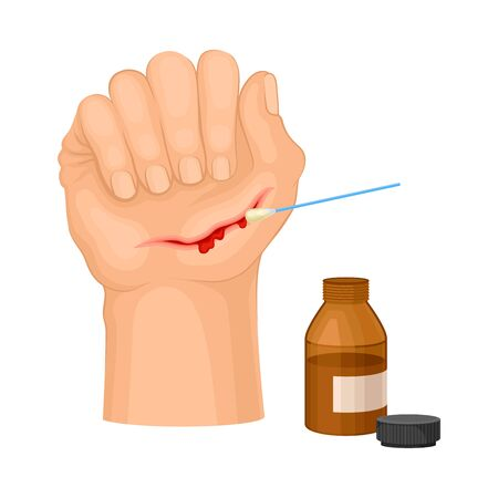 Hand with Wound Streaming Blood Cleaning with Pharmaceutical Substance Procedure Vector Illustration