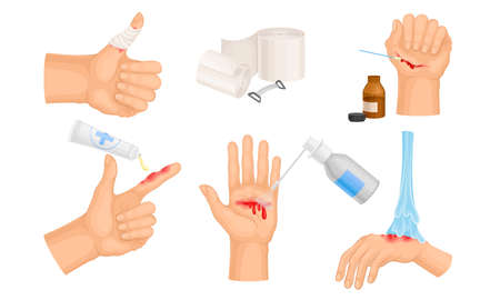 Hands with Injured Skin and Procedures of Bandaging and Wound Cleaning Vector Set Vecteurs